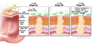 大腸がんのステージ2